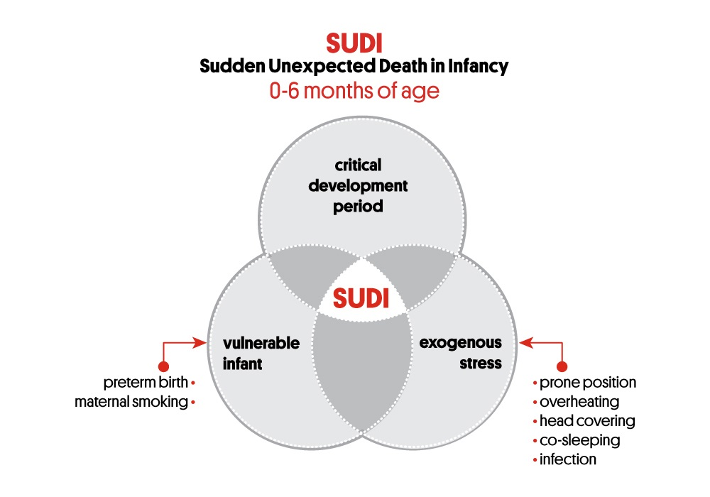 Figure 1 Triple Risk Model for SIDS, illustrating the three overlapping factors: (1) a vulnerable infant; (2) a critical developmental period where the peak incidence of SIDS is 2-4 months; and (3) an exogenous stress